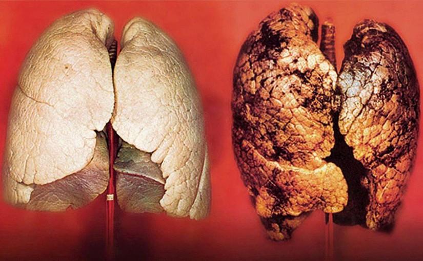 Von der starken rosafarbenen Nichtraucher-Lunge zur mickrigen Teer-Leiche