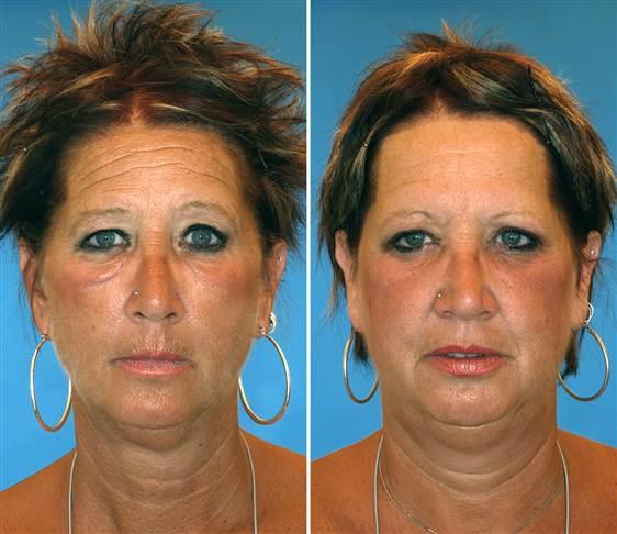 Der linke Zwilling, der jahrelang raucht, sieht deutlich faltiger und älter aus.