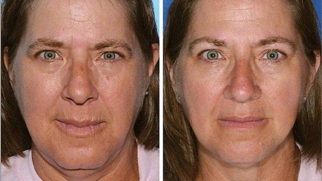 Der linke Zwilling hat 17 Jahre länger geraucht als ihre Schwester. Deutlich sind hier di vielen Falten rund um den Mund, dicke Tränensäcke und Hautunreinheiten zu erkennen.